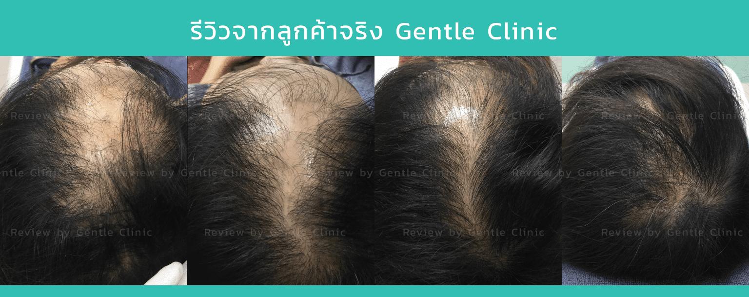 ผมบาง Hair stemcell Review 1